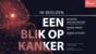 TU Delft Health College; In beelden: Een blik op kanker